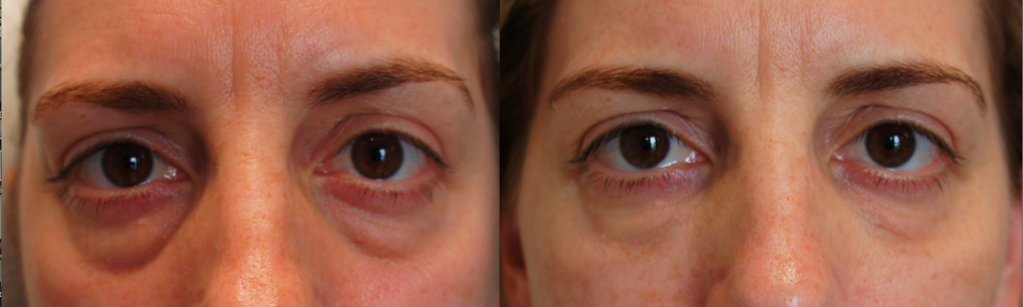 Scare off the upsetting under-eye bags with PRP therapy!
